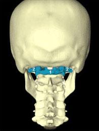 Описание: Вот как выглядит череп и два первых шейных позвонка